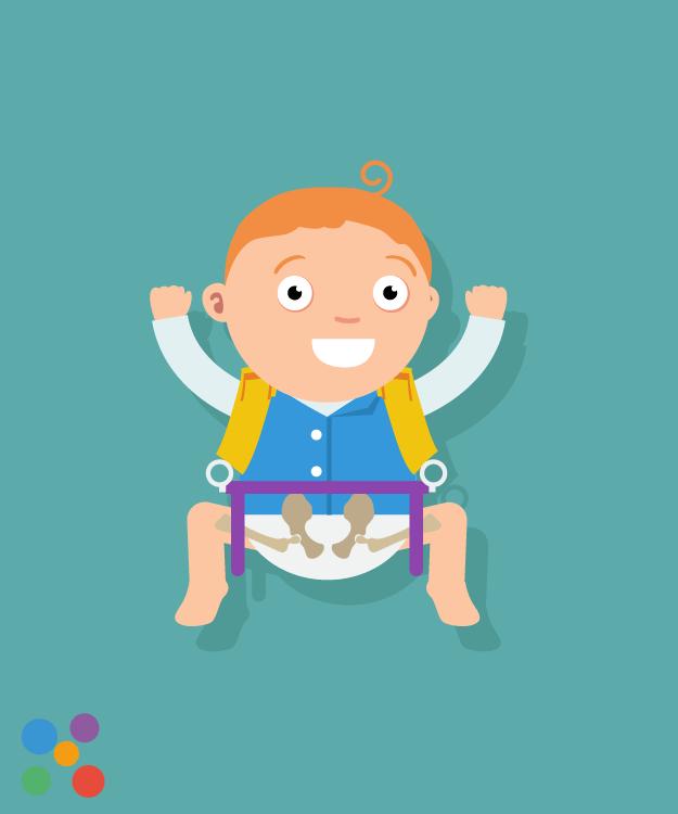 Шина при дисплазии тазобедренных суставов для ребенка