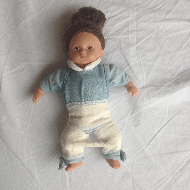 Кукла в гипсе, дисплазия