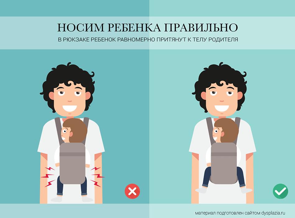 Рюкзак, слинг или кенгуру при дисплазии